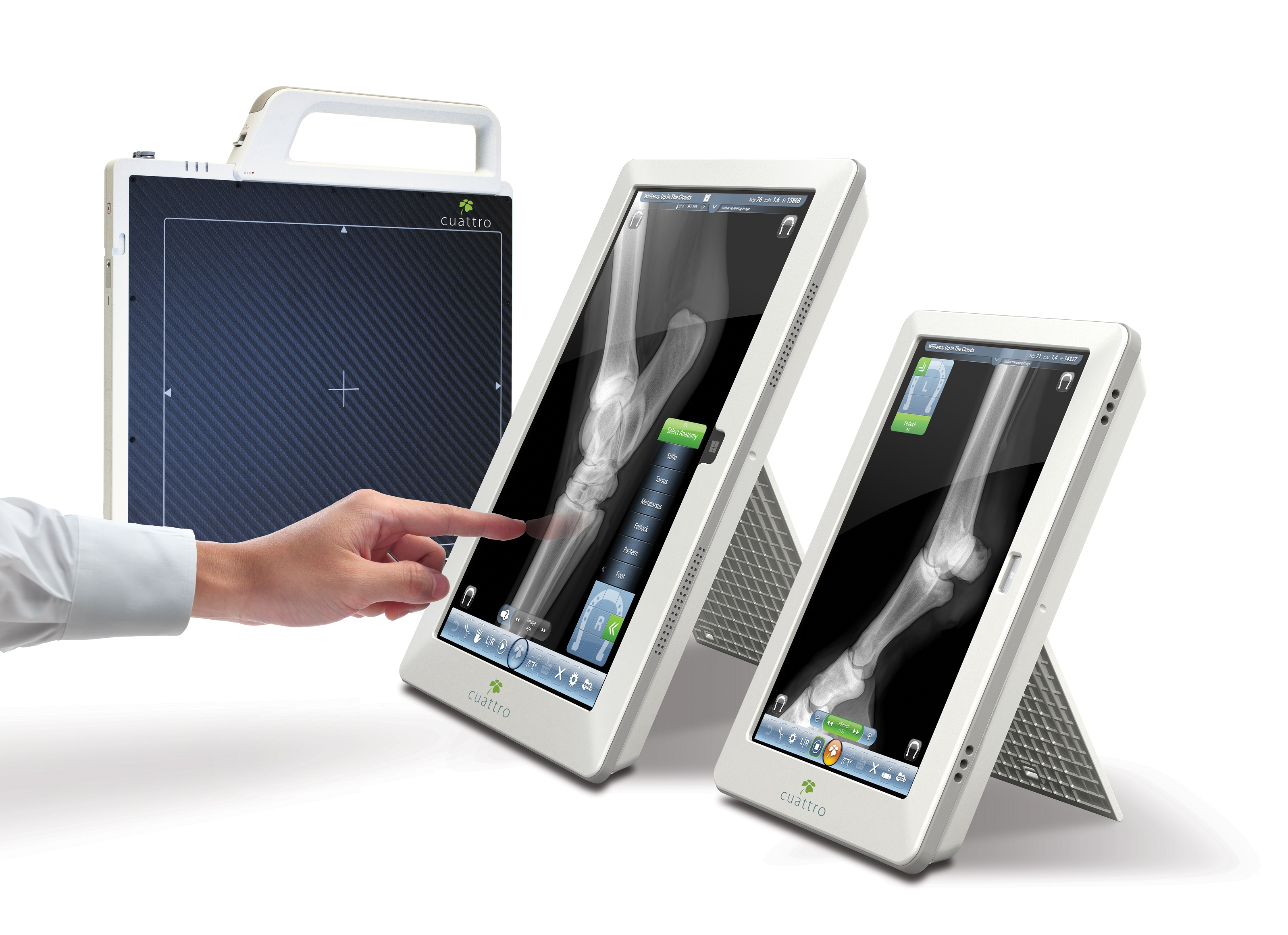 Carestream Quantum CR DR Printers X-ray - Electromek Diagnostic ...